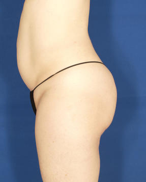 Velashape III - Post treatment