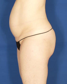 Velashape III - Before