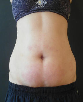 Velashape III - After